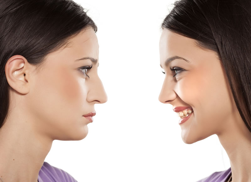 Dr run Sydney Cosmetic Clinic - Non-surgical Nose reshaping