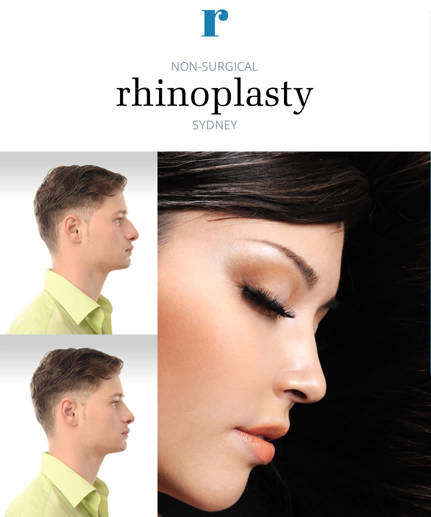 Non-surgical Rhinoplasty Sydney - Nose jobs