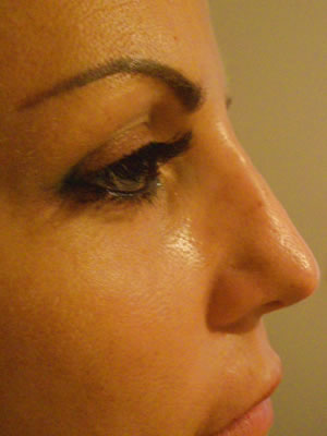 Before & After images - Nose jobs - Non-surgical Rhinoplasty by Dr Sydney Clinic