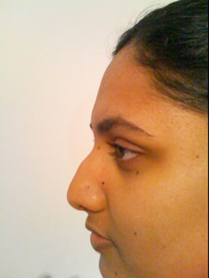 Before & After images - Non-Surgical rhinoplasty for Asian woman