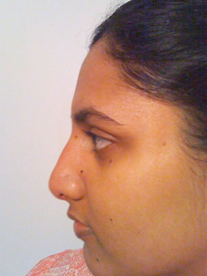 Before & After images - Non-Surgical rhinoplasty for Asian woman Sydney